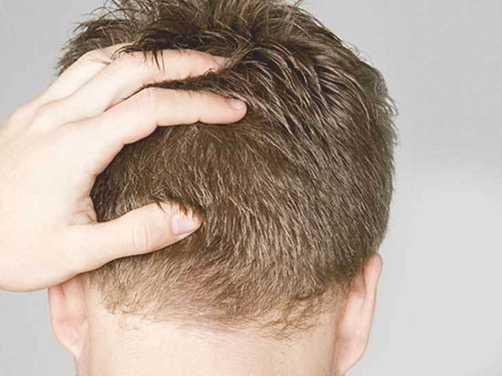 השתלת שיער לגברים – מה חייבים לדעת לפני