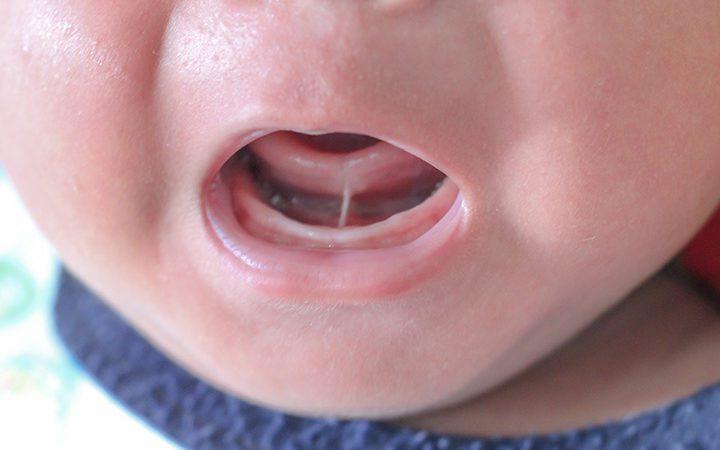 לשון קשורה אצל תינוקות – ממצאים, מחקרים וחיתוך לשון קשורה