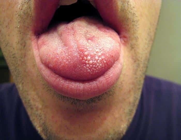 קונדילומה בפה – יבלות וירוס הפפילומה